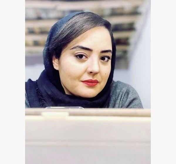 چه چیزی در چهره نرگس محمدی تغییر کرده ؟ + عکس