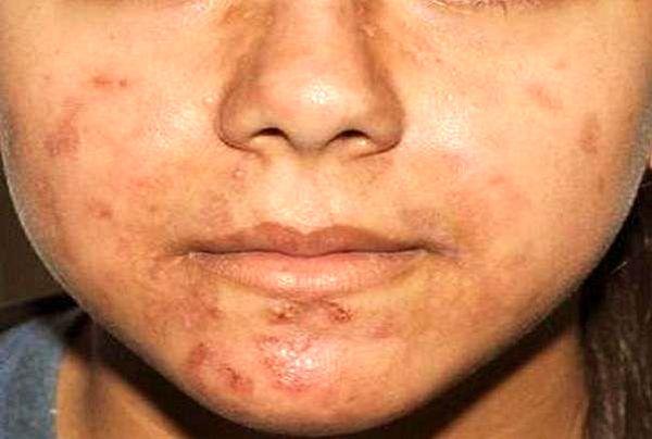 بررسی بیماری های شایع پوستی