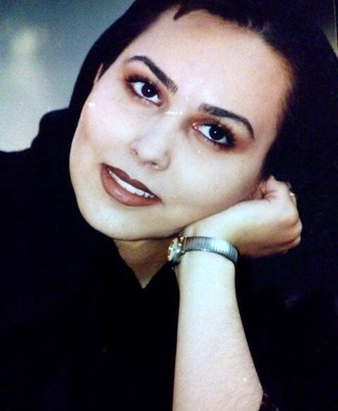 پرستو صالحی قبل از عمل زیبایی + عکس