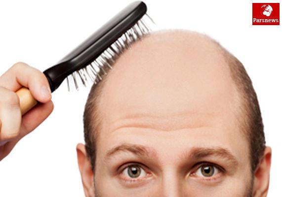 ریزش مو را چگونه درمان کنیم