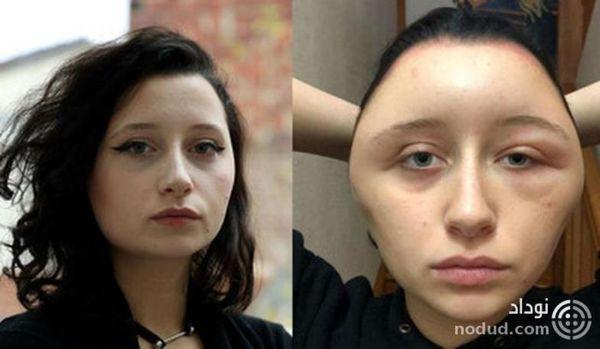 تغییر قیافه وحشتناک بانوی جوان پس از مصرف رنگ موی تقلبی
