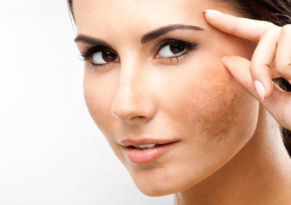 راهکار حذف لکههای قهوهای ناشی از آفتاب روی پوست
