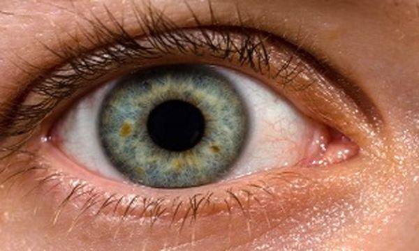 تشخیص زودهنگام پارکینسون از روی چشم