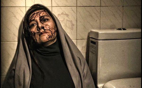 صورت چاقو خورده خانم بازیگر + عکس