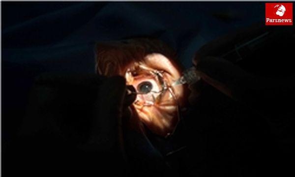 آخرین روشهای درمان بیماریهای چشم در نوزدهمین سمینار فارابی