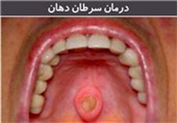 تومورهای حفره دهان به دلیل افزایش آلودگی هوا