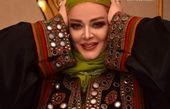 تغییر چهره بازیگر زن پرحاشیه /تصاویر