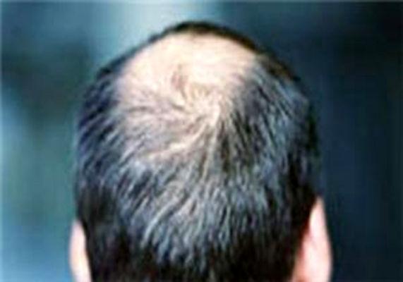 روش های درمان ریزش مو در آقایان