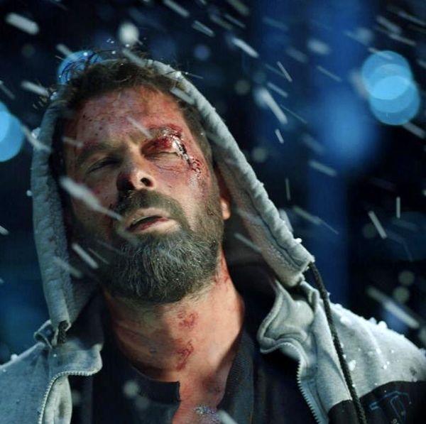 پژمان بازغی با صورت زخمی در برف + عکس
