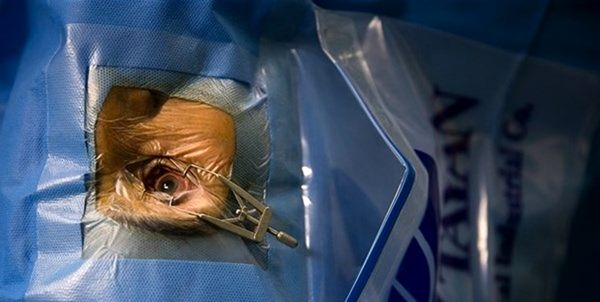 هشدار در مورد کاهش کیفیت خدمات چشم پزشکی در صورت عدم تخصیص ارز دولتی