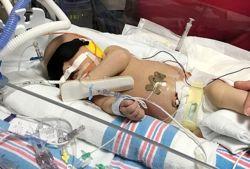 ویروسی که جان نوزاد ۲ روزه را گرفت! +تصاویر