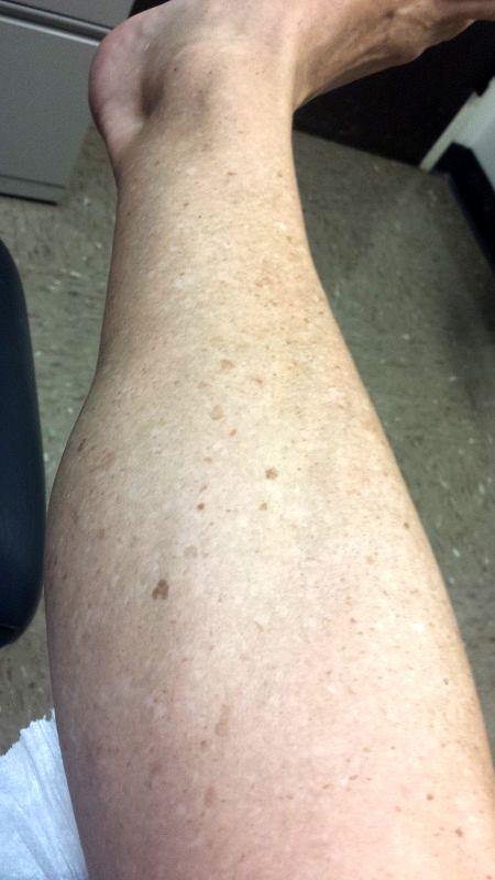 پوست پا, لک پوست پا, لکه های پوستی قهوه ای پوست پا