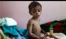 سازمان ملل: ۲۲ میلیون یمنی کمک نیاز دارند