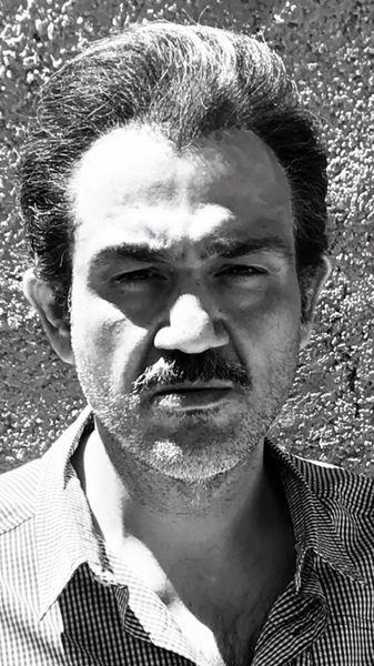مهران غفوریان مو کاشت + عکس