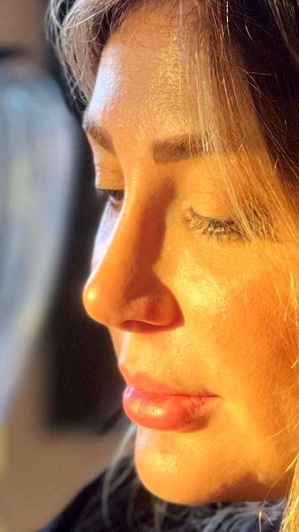 نیمرخ چهره نیوشا ضیغمی + عکس