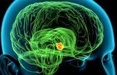 تومورهای غدهی هیپوتالاموس | علائم و روشهای درمانی