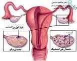 این ۲ عامل رایج تولید کیست در خانم ها که توجه نمیکنند