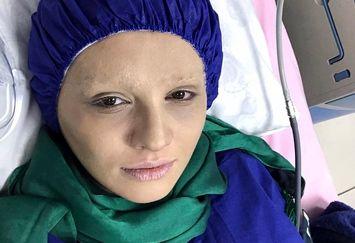 قیافه سرطانی بازیگر وضعیت سفید+عکس