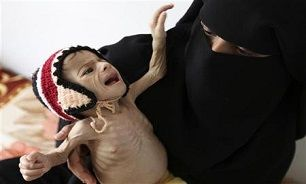 هشدار یونیسف درباره وضعیت بحرانی کودکان یمن