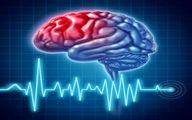 رایجترین علامت وقوع سکته مغزی در افراد