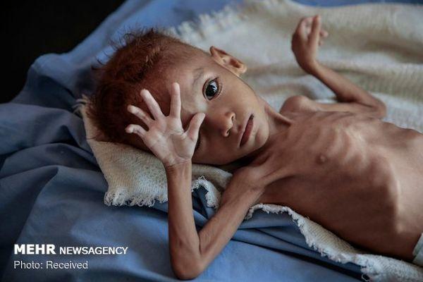 یمن در آستانه فاجعه عظیمی قرار دارد