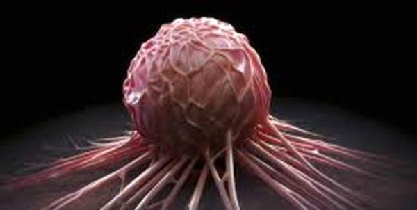 هرچیزی که باید درباره سرطان سینه بدانید
