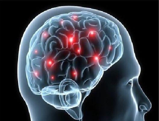 هنگام بروز سکته مغزی چه باید کرد؟