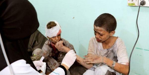400 هزار کودک یمنی به دلیل سوء تغذیه با مرگ فاصلهای ندارند
